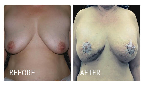 Best cost breastlift before and after in Manila Philippines #8