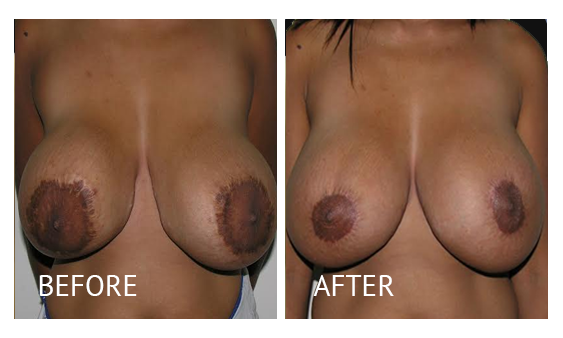 Best cost breastlift before and after in Manila Philippines #9